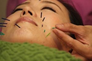 門前仲町で小顔になりたい方は『独自施術の美容鍼灸専門』のリノア鍼灸院の画像